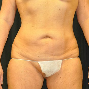 Abdominoplasty Andrew Smith, MD, FACS, Plastic and Reconstructive Surgery Before & After | Patient 01 Photo 0 Thumb
