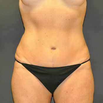 Abdominoplasty Andrew Smith, MD, FACS, Plastic and Reconstructive Surgery Before & After | Patient 01 Photo 1 Thumb