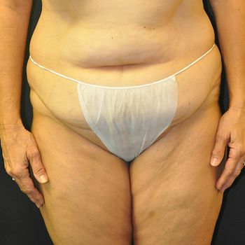 Abdominoplasty Andrew Smith, MD, FACS, Plastic and Reconstructive Surgery Before & After | Patient 06 Photo 0 Thumb