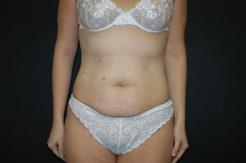 Abdominoplasty Andrew Smith, MD, FACS, Plastic and Reconstructive Surgery Before & After | Patient 11 Photo 0 Thumb