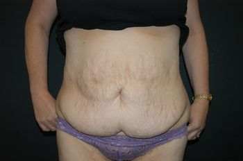 Abdominoplasty Andrew Smith, MD, FACS, Plastic and Reconstructive Surgery Before & After | Patient 12 Photo 0 Thumb