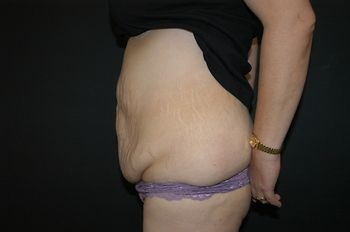 Abdominoplasty Andrew Smith, MD, FACS, Plastic and Reconstructive Surgery Before & After | Patient 12 Photo 2 Thumb