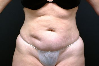 Abdominoplasty Andrew Smith, MD, FACS, Plastic and Reconstructive Surgery Before & After | Patient 13 Photo 0 Thumb
