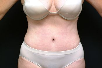 Abdominoplasty Andrew Smith, MD, FACS, Plastic and Reconstructive Surgery Before & After | Patient 13 Photo 1 Thumb