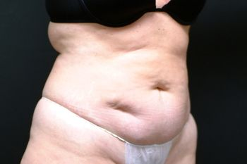Abdominoplasty Andrew Smith, MD, FACS, Plastic and Reconstructive Surgery Before & After | Patient 13 Photo 2 Thumb