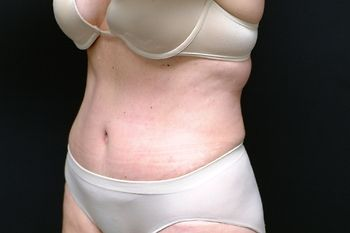 Abdominoplasty Andrew Smith, MD, FACS, Plastic and Reconstructive Surgery Before & After | Patient 13 Photo 3 Thumb