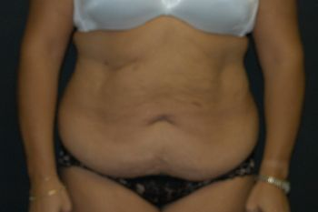 Abdominoplasty Andrew Smith, MD, FACS, Plastic and Reconstructive Surgery Before & After | Patient 14 Photo 0 Thumb