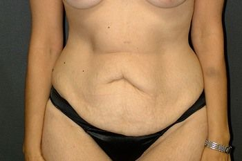 Abdominoplasty Andrew Smith, MD, FACS, Plastic and Reconstructive Surgery Before & After | Patient 15 Photo 0 Thumb