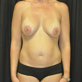 Abdominoplasty Andrew Smith, MD, FACS, Plastic and Reconstructive Surgery Before & After | Patient 20 Photo 0 Thumb