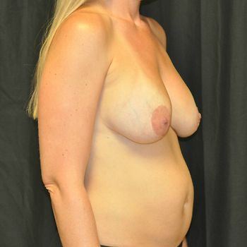 Abdominoplasty Andrew Smith, MD, FACS, Plastic and Reconstructive Surgery Before & After | Patient 20 Photo 2 Thumb