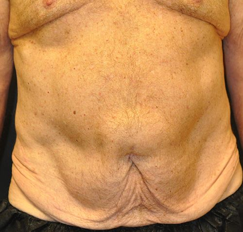 Abdominoplasty Andrew Smith, MD, FACS, Plastic and Reconstructive Surgery Before & After | Patient 25 Photo 0 Thumb