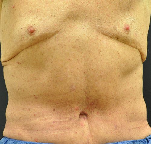 Abdominoplasty Andrew Smith, MD, FACS, Plastic and Reconstructive Surgery Before & After | Patient 25 Photo 1 Thumb