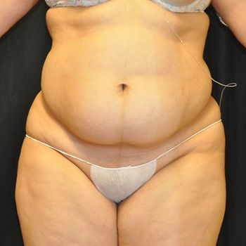 Liposuction Andrew Smith, MD, FACS, Plastic and Reconstructive Surgery Before & After | Patient 01 Photo 0 Thumb
