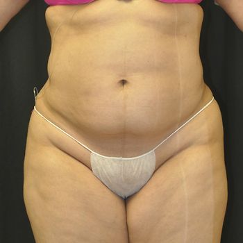 Liposuction Andrew Smith, MD, FACS, Plastic and Reconstructive Surgery Before & After | Patient 01 Photo 1 Thumb