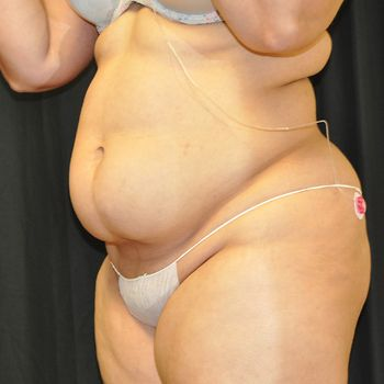 Liposuction Andrew Smith, MD, FACS, Plastic and Reconstructive Surgery Before & After | Patient 01 Photo 2 Thumb