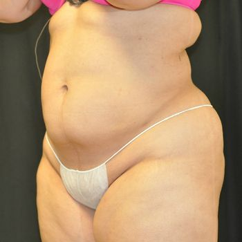 Liposuction Andrew Smith, MD, FACS, Plastic and Reconstructive Surgery Before & After | Patient 01 Photo 3 Thumb