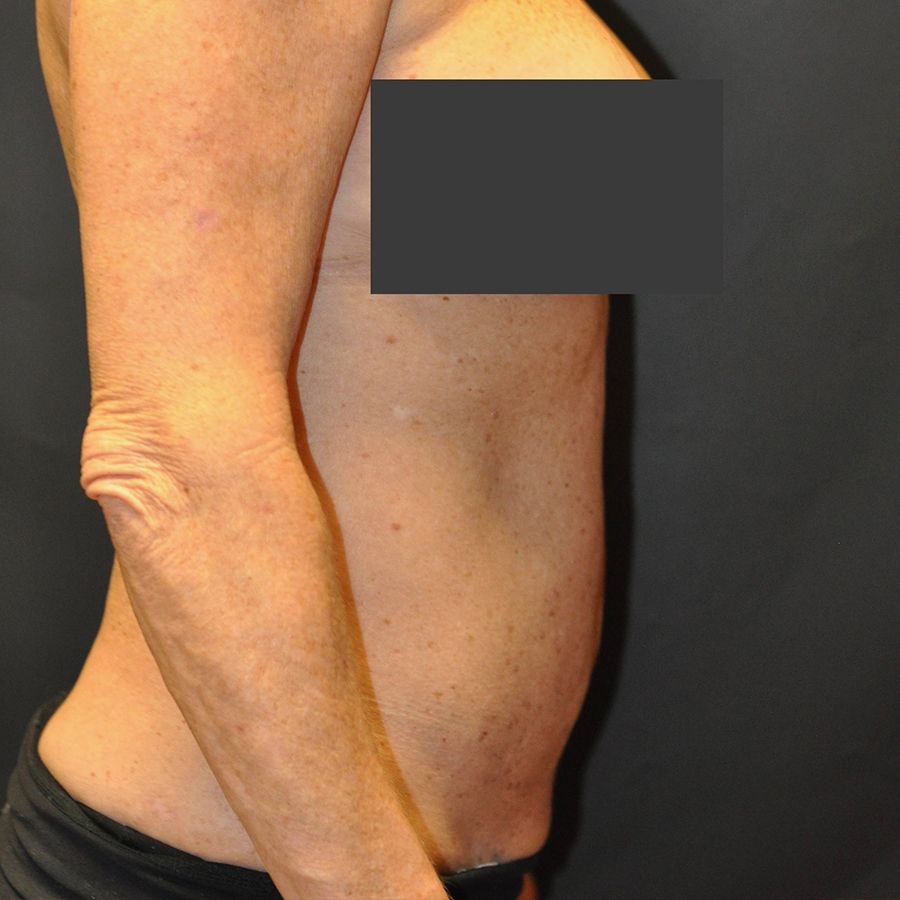 Liposuction Before & After Patient 04