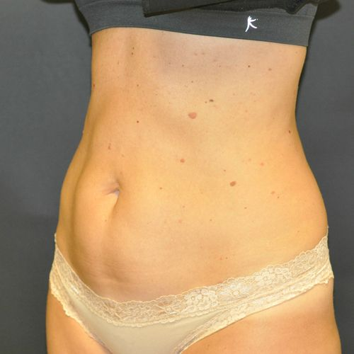 Sculpsure Before & After Photo Patient 01 Thumbnail
