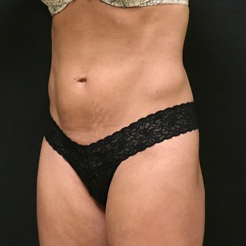 Sculpsure Before & After Photo Patient 04 Thumbnail