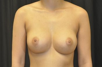 Breast Augmentation Before & After Patient 84