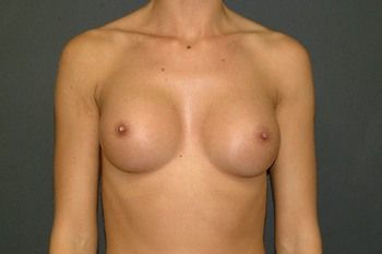 Breast Augmentation Andrew Smith, MD, FACS, Plastic and Reconstructive Surgery Before & After | Patient 94 Photo 1