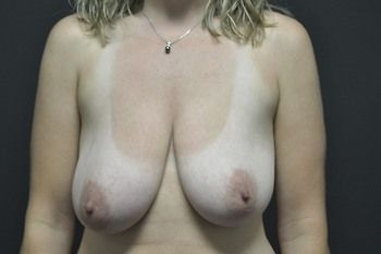 Breast Lift Andrew Smith, MD, FACS, Plastic and Reconstructive Surgery Before & After | Patient 01 Photo 0 Thumb