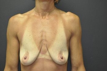 Breast Lift Andrew Smith, MD, FACS, Plastic and Reconstructive Surgery Before & After | Patient 03 Photo 0 Thumb