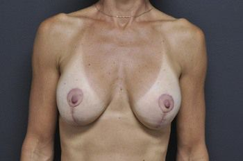 Breast Lift Andrew Smith, MD, FACS, Plastic and Reconstructive Surgery Before & After | Patient 03 Photo 1 Thumb