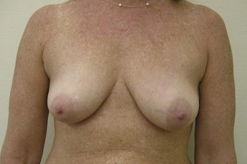 Breast Lift Andrew Smith, MD, FACS, Plastic and Reconstructive Surgery Before & After | Patient 04 Photo 0