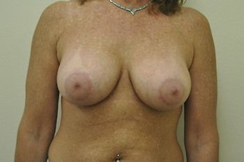Breast Lift Andrew Smith, MD, FACS, Plastic and Reconstructive Surgery Before & After | Patient 04 Photo 1