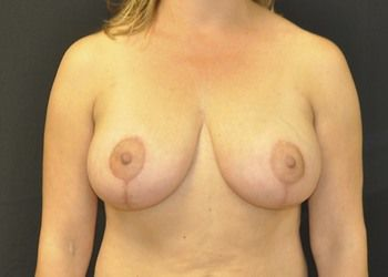 Breast Lift Andrew Smith, MD, FACS, Plastic and Reconstructive Surgery Before & After | Patient 06 Photo 1 Thumb