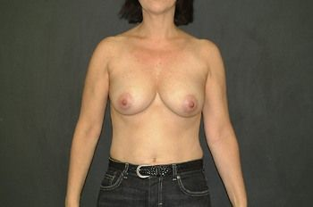 Breast Lift Andrew Smith, MD, FACS, Plastic and Reconstructive Surgery Before & After | Patient 07 Photo 0 Thumb