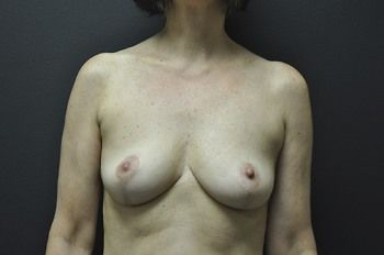 Breast Lift Andrew Smith, MD, FACS, Plastic and Reconstructive Surgery Before & After | Patient 07 Photo 1 Thumb