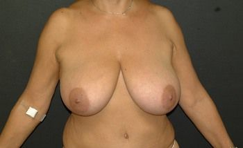 Breast Lift Andrew Smith, MD, FACS, Plastic and Reconstructive Surgery Before & After | Patient 08 Photo 0 Thumb