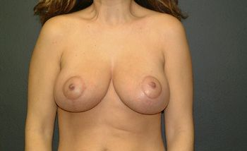 Breast Lift Andrew Smith, MD, FACS, Plastic and Reconstructive Surgery Before & After | Patient 08 Photo 1 Thumb