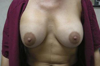 Breast Lift Andrew Smith, MD, FACS, Plastic and Reconstructive Surgery Before & After | Patient 09 Photo 0