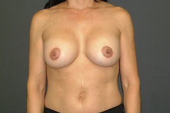 Breast Lift Andrew Smith, MD, FACS, Plastic and Reconstructive Surgery Before & After | Patient 09 Photo 1