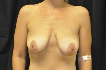 Breast Lift Andrew Smith, MD, FACS, Plastic and Reconstructive Surgery Before & After | Patient 10 Photo 0 Thumb