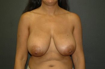 Breast Lift Andrew Smith, MD, FACS, Plastic and Reconstructive Surgery Before & After | Patient 12 Photo 0 Thumb