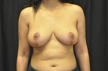 Breast Lift Andrew Smith, MD, FACS, Plastic and Reconstructive Surgery Before & After | Patient 12 Photo 1 Thumb