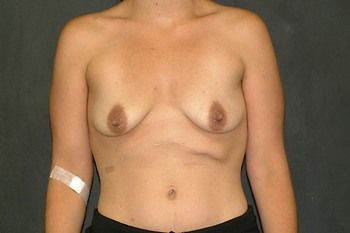 Breast Lift Andrew Smith, MD, FACS, Plastic and Reconstructive Surgery Before & After | Patient 13 Photo 0 Thumb