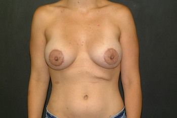Breast Lift Andrew Smith, MD, FACS, Plastic and Reconstructive Surgery Before & After | Patient 13 Photo 1 Thumb