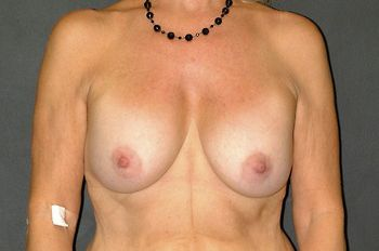 Breast Lift Before & After Patient 14