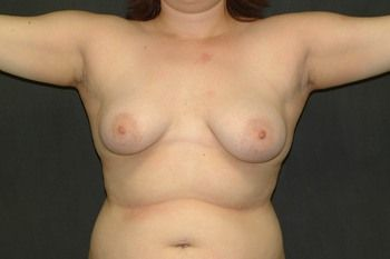 Breast Lift Andrew Smith, MD, FACS, Plastic and Reconstructive Surgery Before & After | Patient 15 Photo 0 Thumb