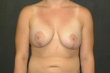 Breast Lift Andrew Smith, MD, FACS, Plastic and Reconstructive Surgery Before & After | Patient 15 Photo 1 Thumb