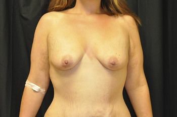 Breast Lift Andrew Smith, MD, FACS, Plastic and Reconstructive Surgery Before & After | Patient 16 Photo 0
