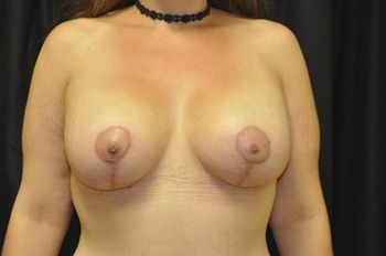 Breast Lift Andrew Smith, MD, FACS, Plastic and Reconstructive Surgery Before & After | Patient 16 Photo 1