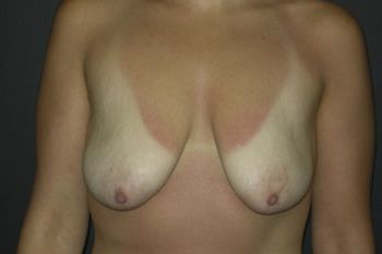 Breast Lift Andrew Smith, MD, FACS, Plastic and Reconstructive Surgery Before & After | Patient 17 Photo 0