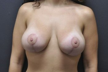 Breast Lift Andrew Smith, MD, FACS, Plastic and Reconstructive Surgery Before & After | Patient 17 Photo 1