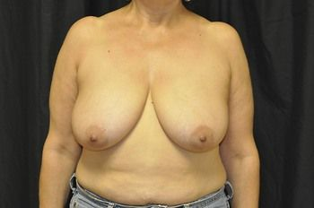 Breast Lift Andrew Smith, MD, FACS, Plastic and Reconstructive Surgery Before & After | Patient 18 Photo 0 Thumb